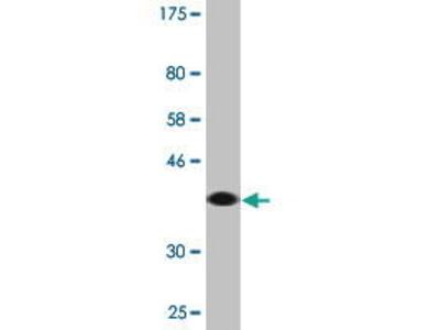 Mouse Anti-RABGAP1L Antibody