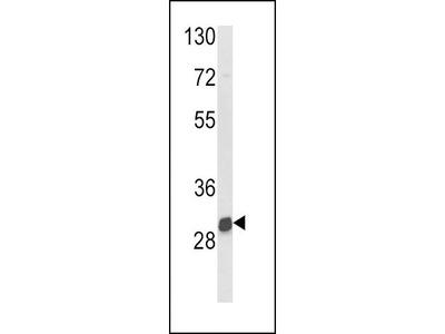 Rabbit Anti-NAT2, CT Antibody
