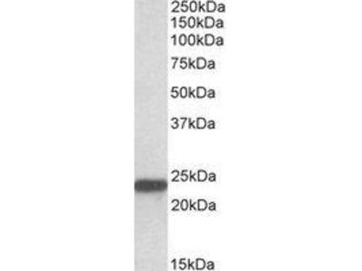 Goat Anti-SOD2 Antibody