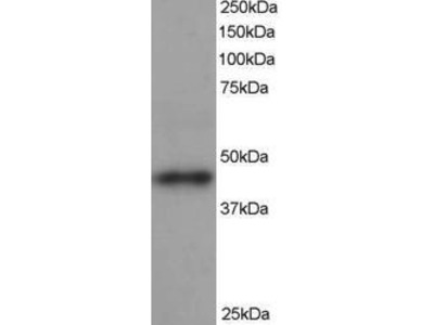Goat Anti-ARP1 homolog B Antibody