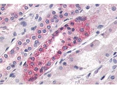 Rabbit Anti-LPAR4 Antibody