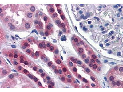 Mouse Anti-SDSL Antibody
