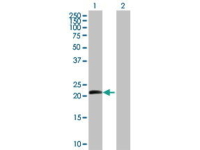 Mouse Anti-Betacellulin Antibody