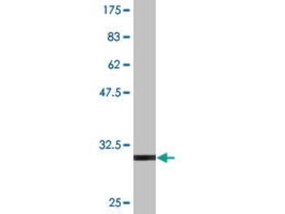 Mouse Anti-IL11 Antibody