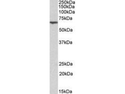 Goat Anti-ANTXR2 Antibody