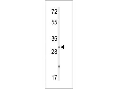 Rabbit Anti-DUSP2, CT Antibody