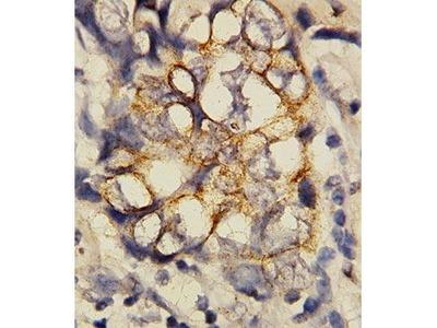 Rabbit Anti-GREM1 Antibody