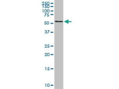 Mouse Anti-B4GALNT1 Antibody