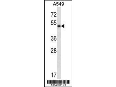 Rabbit Anti-PNLIP, CT Antibody