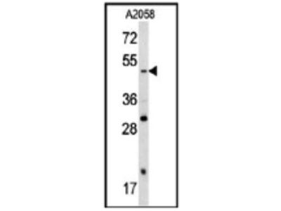 Rabbit Anti-Sox 4 Antibody