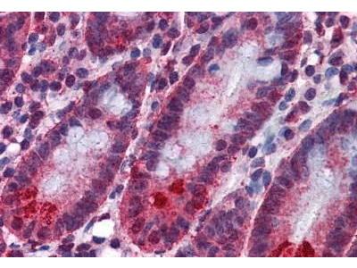 Mouse Anti-SPSB2 Antibody
