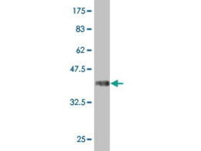 Mouse Anti-ATP6V1D Antibody