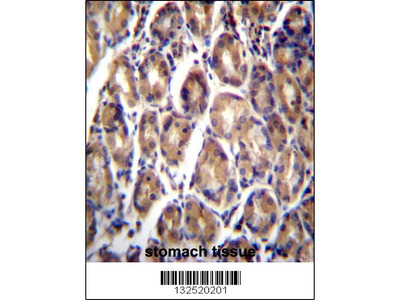 Rabbit Anti-RARRES1, CT Antibody