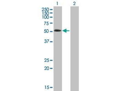 Mouse Anti-ABLIM3 Antibody