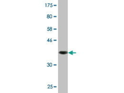 Mouse Anti-ABCG2 Antibody