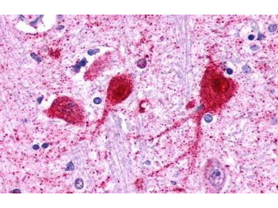 Rabbit Anti-GALR3 Antibody
