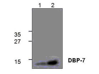 Rabbit Anti-CHD7 Antibody