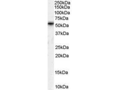 Goat Anti-TPTE Antibody