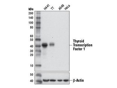 Rabbit Anti-Thyroid Transcription Factor 1 Antibody