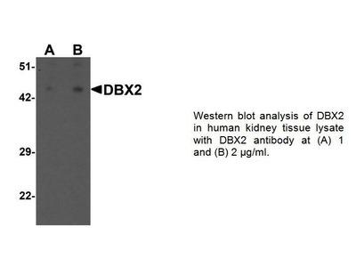 Rabbit Anti-DBX2 Antibody