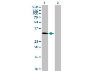 Mouse Anti-NT5C Antibody