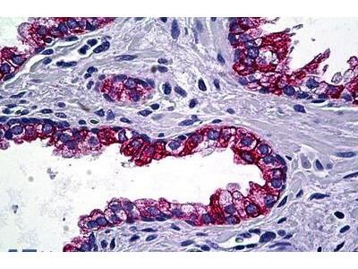 Mouse Anti-KRT4 Antibody