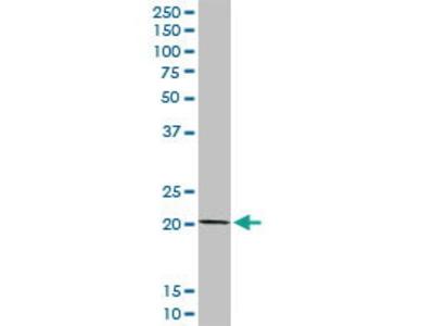 Rabbit Anti-COMMD1 Antibody