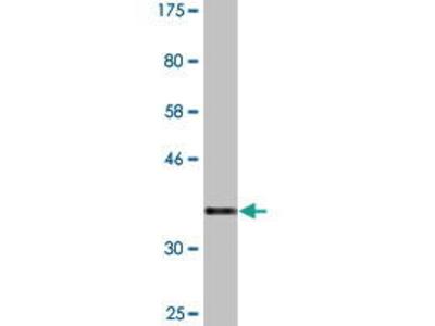 Mouse Anti-PATZ1 Antibody