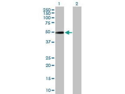 Mouse Anti-NR2F2 Antibody