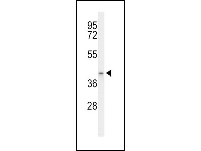 Rabbit Anti-ACAD8, ID Antibody