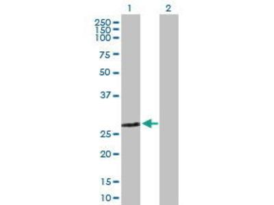 Mouse Anti-ZMYND19 Antibody