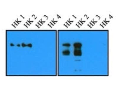 Mouse Anti-Hexokinase 1/2 Antibody