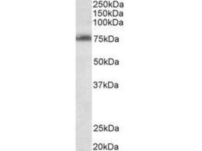 Goat Anti-DENTT Antibody