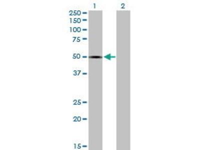 Mouse Anti-SPOCK1 Antibody