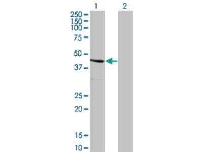 Mouse Anti-SERPINE2 Antibody