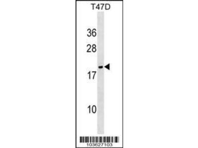 Rabbit Anti-Nucleoside Diphosphate Kinase 6, NT Antibody