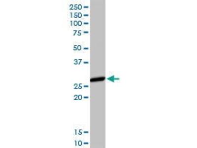 Rabbit Anti-HLA-DMA Antibody