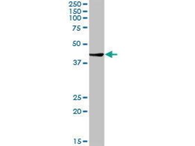 Rabbit Anti-CTBS Antibody