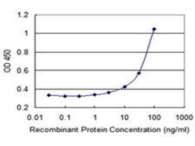 Mouse Anti-ATP8B1 Antibody