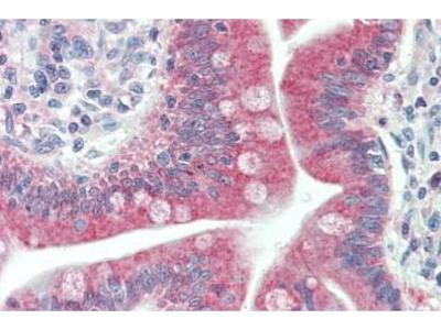 Rabbit Anti-LC3C Antibody