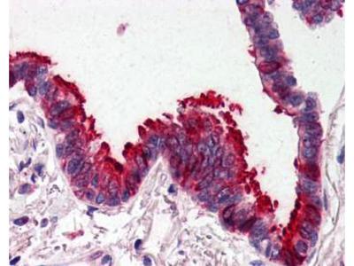 Rabbit Anti-Ski-Like Oncogene Antibody