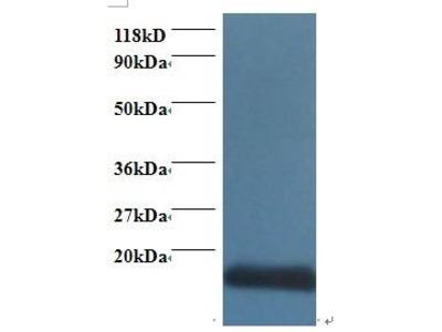 Pab Rb x human COX5A (COX-VA, COX, VA) antibody