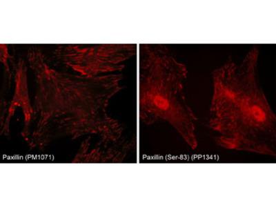 Paxillin Phospho-Regulation Antibody Sampler Kit