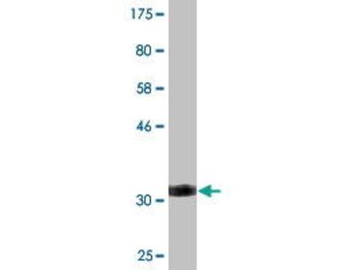Mouse Anti-SLC2A10 Antibody