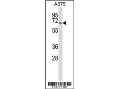 Rabbit Anti-PPP3CA, CT Antibody