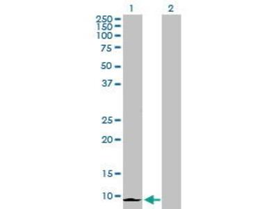Rabbit Anti-CXCL6 Antibody