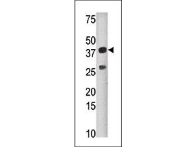 Rabbit Anti-SULT1C2, NT Antibody