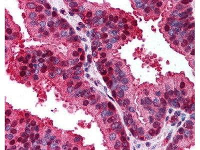 Rabbit Anti-CDKN2A Antibody