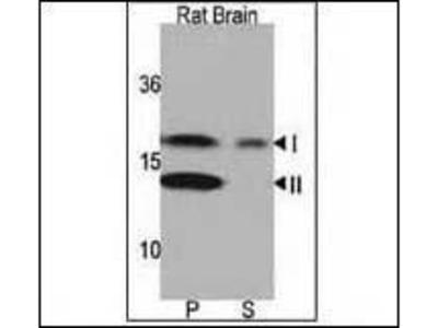 Rabbit Anti-MAP1LC3A, NT Antibody