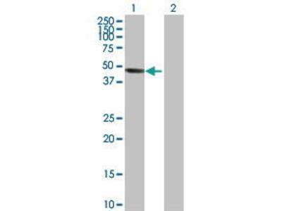 Rabbit Anti-INPP5A Antibody